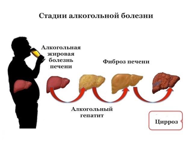 симптомы проблем с печенью при алкоголизме